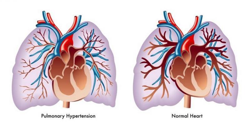 فشار خون ریوی چیست؟